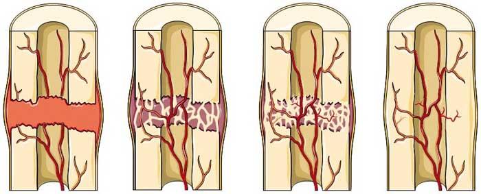 Healing-of-fractured-bone